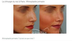Rhinoplastie Paris la chirurgie esthétique du nez
